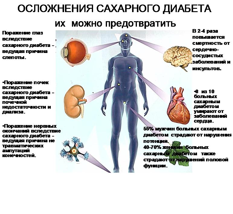 Почему ацетон у больных с сахарным диабетом